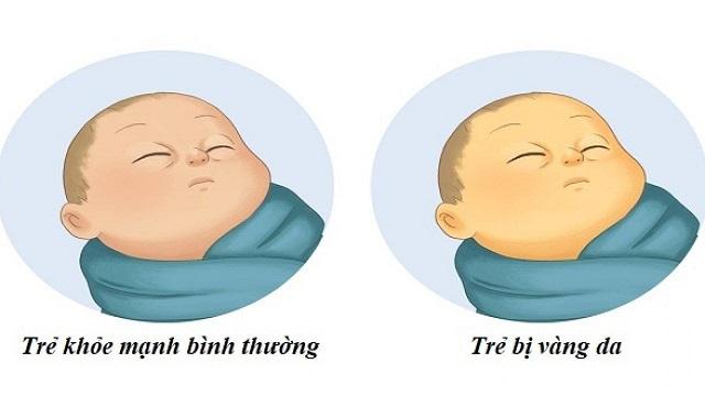 vàng da ở trẻ sơ sinh bao lâu thì hết